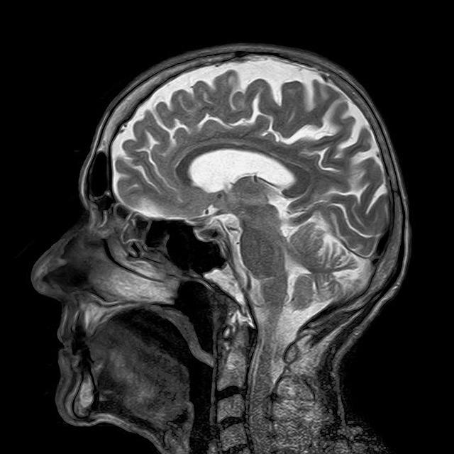סריקת מוח